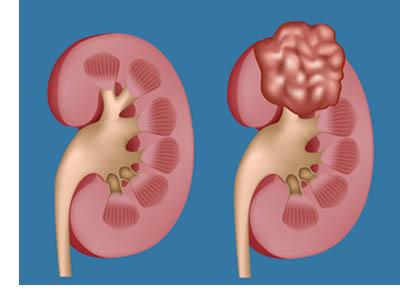 tumore ai reni